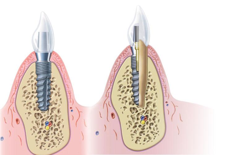 Zahnimplantate Zahnarzt Bruchsal