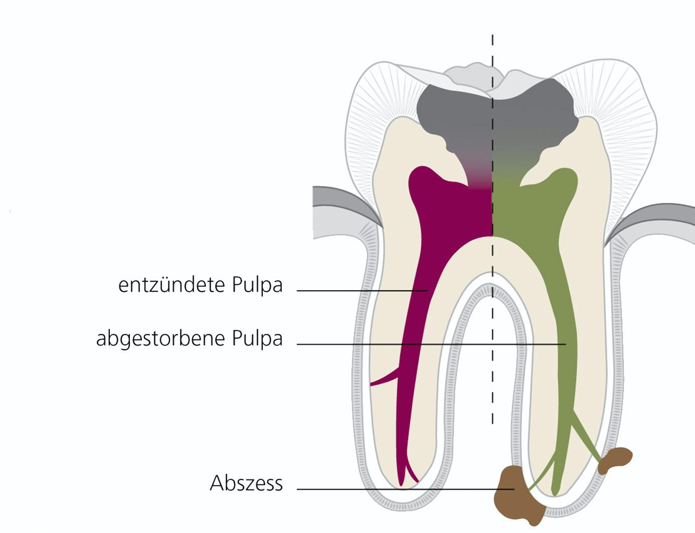 zahnarzt bruchsal endodontie wurzel-kanal-behandlung