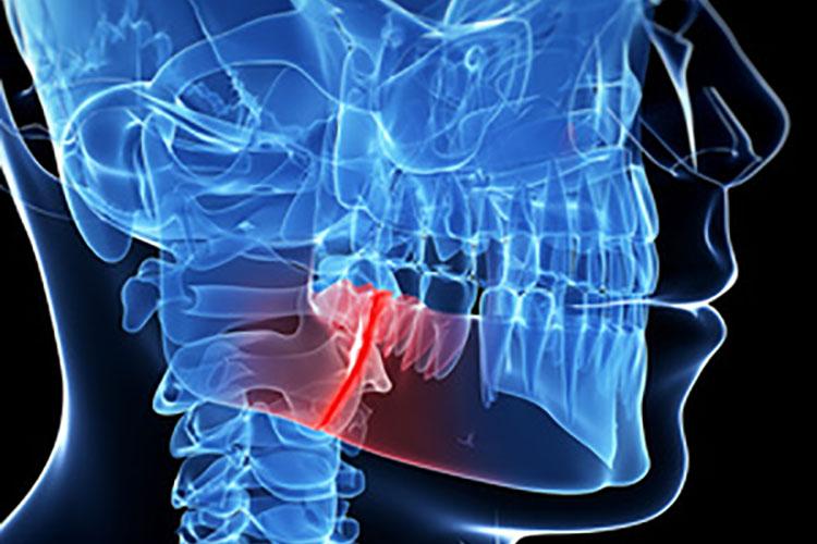 zahnarzt bruchsal funktionelle therapie
