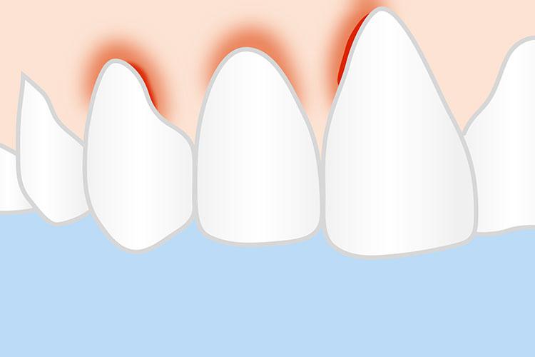 zahnarztpraxis bruchsal synerdent parodontologie