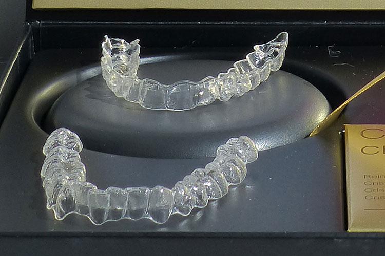 invisalign unsichtbare zahnspangen bruchsal